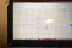 καρδιογράφος