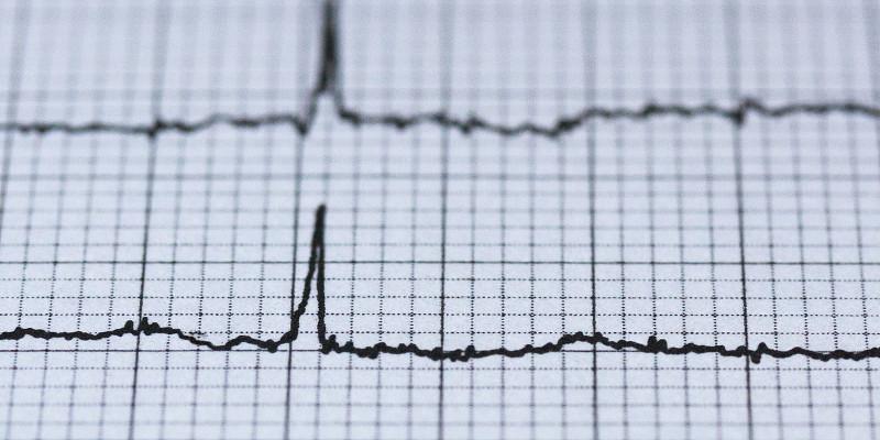 Cardiogram Electrocardiogram