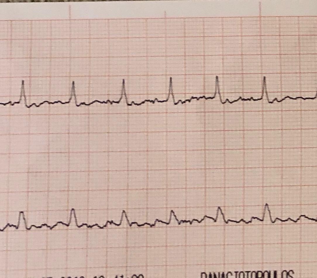 κολπική μαρμαρυγή καρδιολόγος Μαρούσι